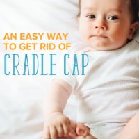 A Super Easy Technique to Get Rid of Baby Cradle Cap