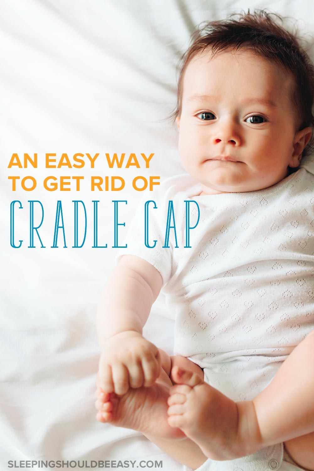 Baby lying down, looking at the camera: An easy way to get rid of cradle cap
